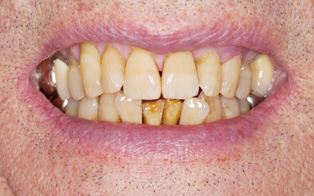 Mandatory Credit: Photo by Photofusion/REX Shutterstock (2290011a) Model Released - Elderly man's decaying teeth UK Health