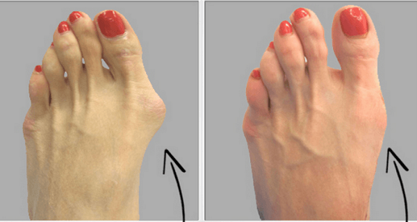 Why-do-doctors-keep-this-simple-recipe-away-from-the-public-Here's-how-to-get-rid-of-bunions-completely-natural