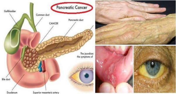 10-potential-early-warning-signs-of-pancreatic-cancer