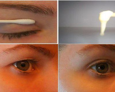 with-this-magical-recipe-get-rid-of-sagging-eyelids-in-2-minutes