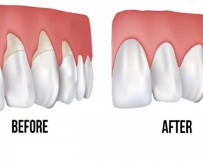 grow-back-receding-gums-with-these-home-remedies