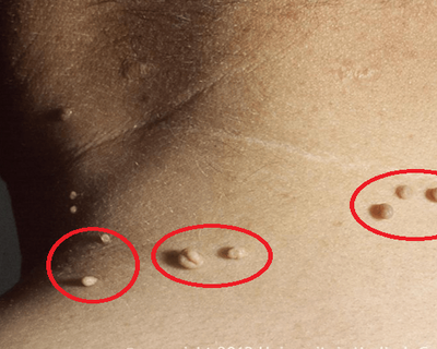 removing-warts-easily