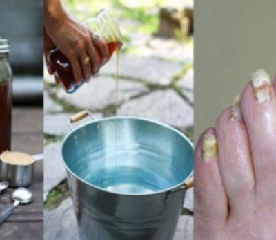This-Super-Easy-2-Ingredient-Way-Will-Get-Rid-of-Nail-Fungus-Forever