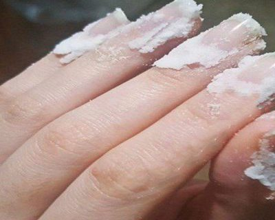 Rub-Some-Baking-Soda-On-Your-Nails-And-Watch-What-Happens-This-Trick-Will-Change-Your-Life-Forever